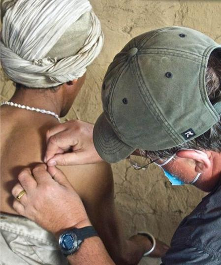 Tim Aitken administering acupuncture at the Humla clinic.